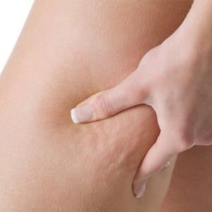 La cellulite peut être dangereuse pour la santé