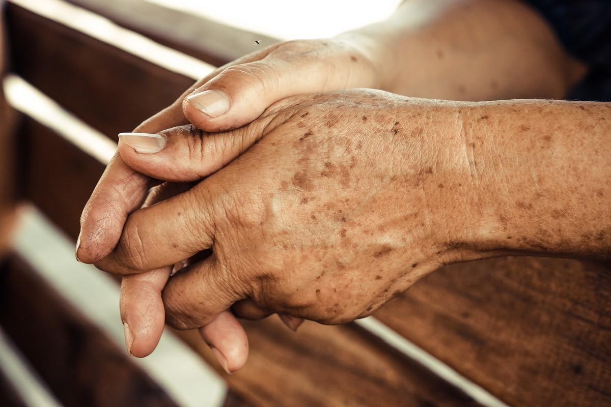 La Cryothérapie et les taches brunes
